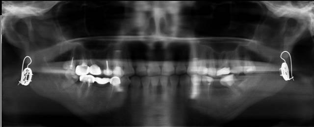 ortopan2_640